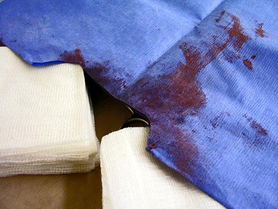 пятна крови на деликатной одежде